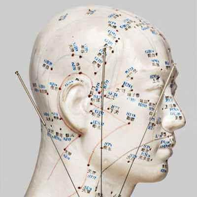 Akupunktur dan Terapi Kesuburan