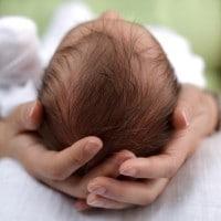 Kenali Lebih Jauh Tentang Plagiocephaly pada Bayi