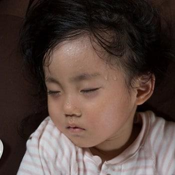 Herpes Pada Bayi Ciri Ciri Penyebab Dan Cara Mengatasinya