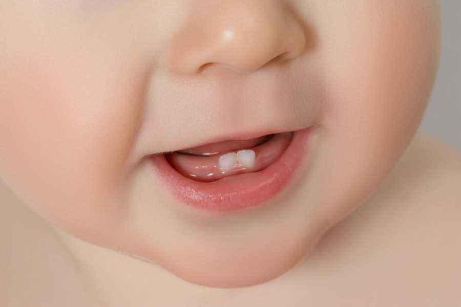 3 Tanda si Kecil Mulai Tumbuh Gigi
